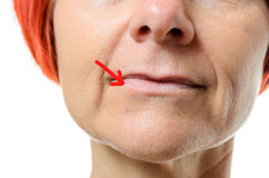 Woman with blemish on chin Royalty Free Stock Photos