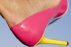 Woman with blister on foot and high heel shoe Stock Images