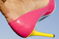Woman with blister on heel and stiletto shoe Stock Photos