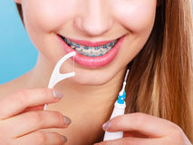 Woman with braces cleaning teeth with toothbrush Royalty Free Stock Image