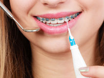 Woman with braces having dentist appointment Royalty Free Stock Images