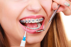 Woman with braces having dentist appointment. Dental health care, stomatology concept. Woman with braces having dentist appointment, looking at teeth with small Royalty Free Stock Photo