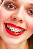 Woman with brackets Royalty Free Stock Photos
