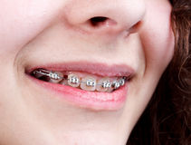 Woman with brackets Stock Photos