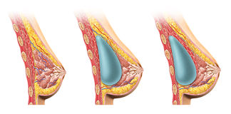 Woman breast implant cross section. stock illustration