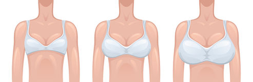 Woman breast Royalty Free Stock Photos