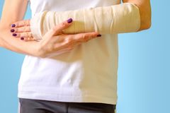 Woman with broken arm bone in cast, plastered hand on blue background. royalty free stock images