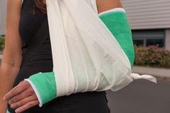 Woman with broken arm Royalty Free Stock Image