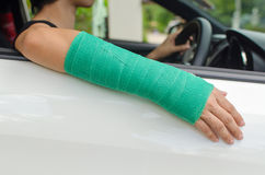 Woman with broken hand in green cast sitting in car, insurance c Royalty Free Stock Photos