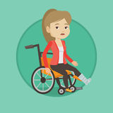 Woman with broken leg sitting in wheelchair. Royalty Free Stock Photos