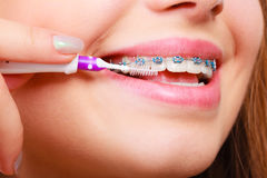 Woman brushing teeth with braces using brush. Dentist and orthodontist concept. Young woman cleaning and brushing teeth with blue braces using toothbrush Stock Photo
