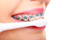 Woman brushing teeth with braces using brush. Dentist and orthodontist concept. Young woman cleaning and brushing teeth with blue braces using toothbrush Stock Photos