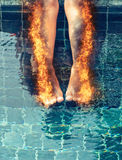 Woman with burning legs and scorched skin Stock Photos