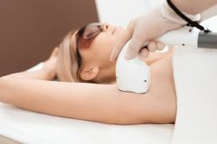 The woman came to the procedure of laser hair removal. The doctor treats her armpits with an apparatus. A woman is lying on a couch in a modern beauty salon stock photo
