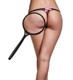 Woman with cellulitis on buttocks Stock Photo