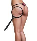 Woman with cellulitis on buttocks Stock Photos