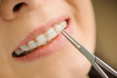 Woman with ceramic braces on teeth at the dental office. Close-up ceramic braces on teeth at the dental clinic. Dentist holding dental tool. Orthodontic Stock Image