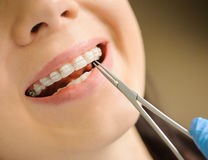 Woman with ceramic braces on teeth at the dental office Royalty Free Stock Photography
