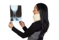 Woman with cervical collar and radiography Stock Photography