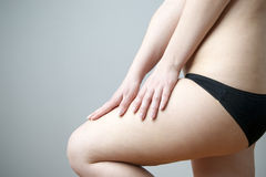 Woman checks the elasticity of the skin on the legs Stock Photo