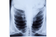 Woman Chest X-ray Royalty Free Stock Images