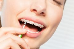 Woman cleaning braces using interdental brush. Close-up portrait of woman cleaning teeth braces using interdental brush stock photo