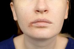 Herpes on the lips: a woman with a cold and the herpes virus is examined by a dermatologist and infectious disease specialist. A woman with a cold and the herpes royalty free stock images