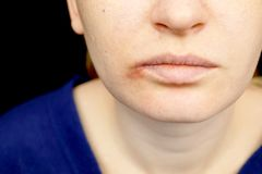 Herpes on the lips: a woman with a cold and the herpes virus is examined by a dermatologist and infectious disease specialist. A woman with a cold and the herpes stock photos
