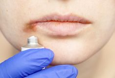 Herpes on the lips: a woman with a cold and the herpes virus is examined by a dermatologist and infectious disease specialist. A woman with a cold and the herpes stock photography