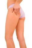 Woman controls the cellulite Stock Photos