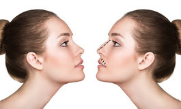 Woman before and after cosmetic nose surgery royalty free stock photo