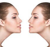 Woman before and after cosmetic nose surgery Royalty Free Stock Images