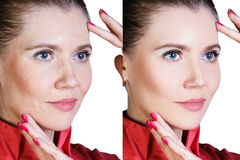Woman before and after cosmetic procedure. Middle aged woman with aging singes, wrinkles, blemishes. Before and after cosmetic procedure Royalty Free Stock Photos