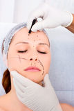 Woman cosmetic surgery Royalty Free Stock Image