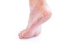 Woman cracked heels with white background, foot healthy