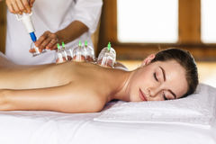 Woman with cupping treatment on back. Woman laying on chest with cupping treatment on back Royalty Free Stock Photography