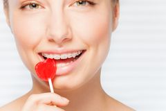 Woman with dental braces biting red lollipop. Portrait of beautiful young woman with dental braces biting off red lollipop in the shape of heart stock images