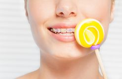 Woman with dental braces holding yellow lollipop. Portrait of woman with colorful orthodontic brackets, holding yellow swirl lollipop stock photo