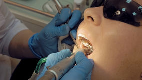 Woman at the dentist medical clinic for treatment. Woman at the dentist clinic office gets dental medical examination and treatment. Close up shot. Odontic and royalty free stock photography
