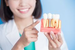 Woman dentist take implant tooth Stock Photo