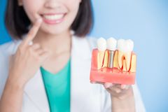 Woman dentist take implant tooth Royalty Free Stock Image