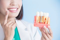 Woman dentist take implant tooth stock image