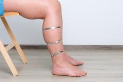 Woman diabetes leg Stock Photo