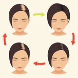Woman with different stages of hair loss Stock Photos
