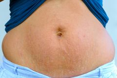 Woman displaying stretch marks after pregnancy. Woman displaying stretch marks on her abdomen after pregnancy caused by tearing of the dermis layer of the skin royalty free stock photo