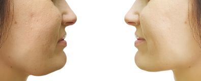 Woman double chin sagging before after collage treatment tightening procedures. Woman double chin sagging before and after procedures tightening treatment royalty free stock images
