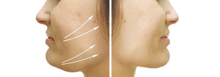 Woman double chin sagging before  after procedures. Woman double chin sagging before and after procedures stock photos