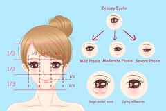 Woman with droopy eyelids vector illustration
