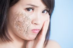 Woman with dry skin Royalty Free Stock Photos
