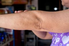 Woman with dry skin on elbow and arm,Body and health care concept,Wrinkles royalty free stock photography